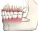親知らずの抜歯後の痛みや腫れはいつまで?食事レシピのおすすめは?