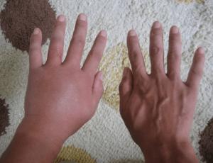 蜂刺された時の腫れの症状 アシナガバチに刺されて手が腫れている