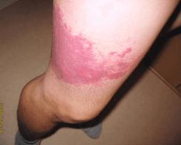 蜂刺された時の腫れの症状 スズメバチに刺された症状
