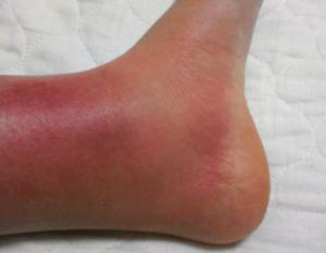 蜂窩織炎の症状の写真 足の腫れ