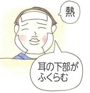 おたふく風邪の初期症状