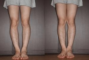 コルギ骨気の効果 脚足